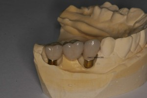 Implant-retained bridge on patient model