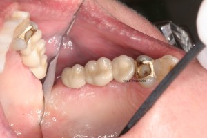 Implant-retained bridge in place