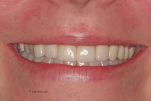 Patient 1 smile makeover after