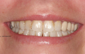 Patient 1 smile makeover before