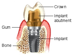 Dental implants - components
