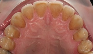 Dental erosion on upper teeth