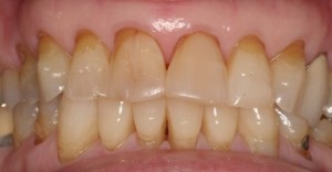 Dental erosion with staining