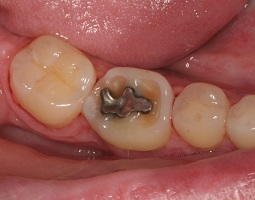 Dental erosion on a lower molar tooth around a silver filling