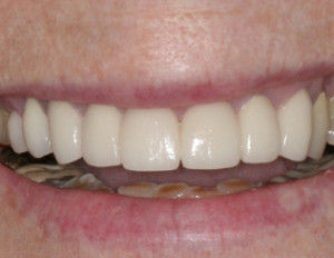 Porcelain crowns used to restore severe dental erosion