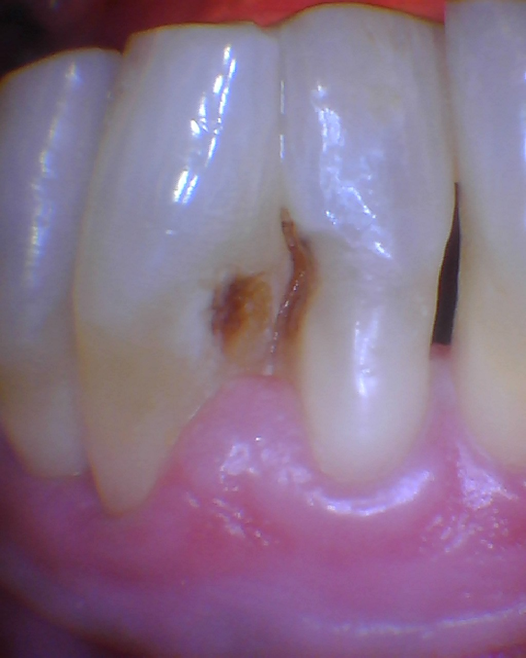 Teeth with root caries or cavities